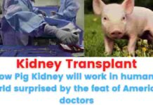 Kidney Transplant: Now Pig Kidney will work in humans, world surprised by the feat of American doctors.
